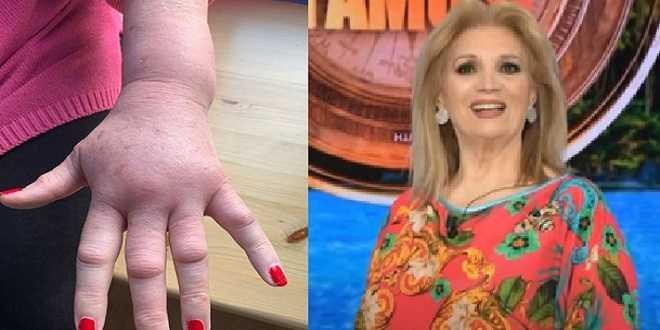 Isola 2021, paura per Iva Zanicchi: le condizioni della mano dopo la puntura di vespa
