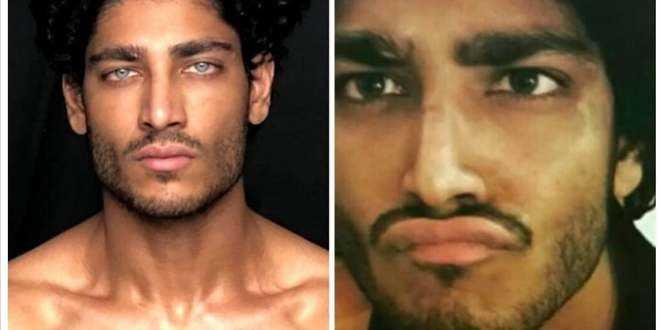 Akash Kumar: ecco qual è la rischiosa operazione agli occhi a cui si sarebbe sottoposto