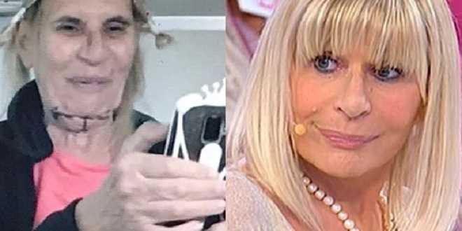 Gemma Galgani, svelati tutti i suoi ritocchini: dagli zigomi ai capelli