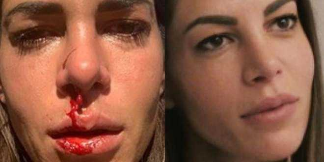 Temptation Island, Giada Giovanelli torna su Instagram dopo l'aggressione del padre e rivela