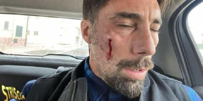 Striscia la Notizia, Vittorio Brumotti massacrato di botte: la prognosi shock